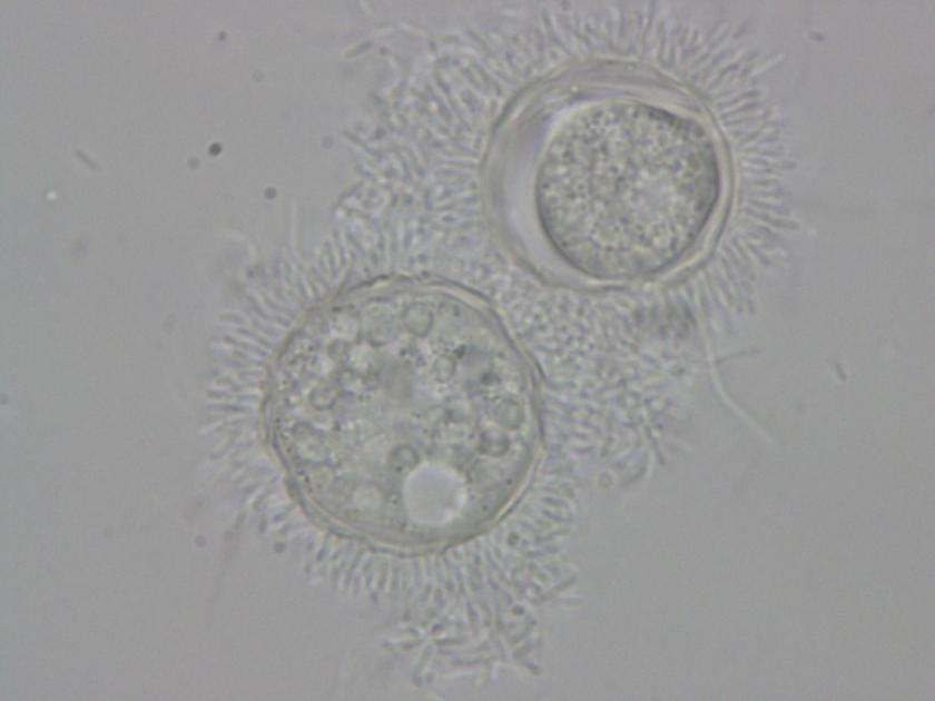 Amoebae + bacteria